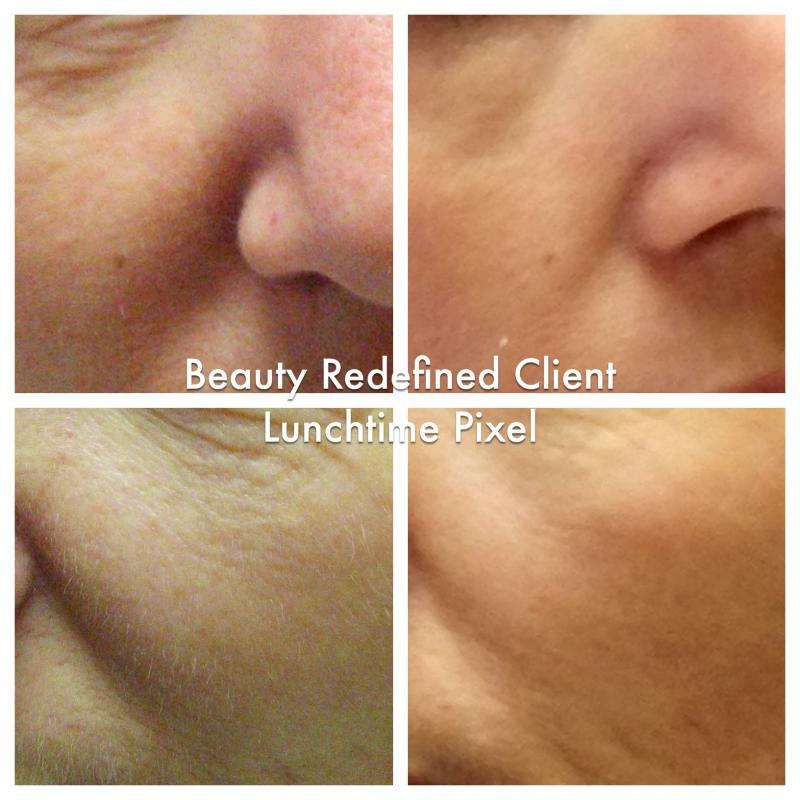 Beauty Redefined Medical Aesthetic Clinic Pixel Skin